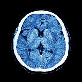 foto of cat-scan  - CT scan of brain  - JPG