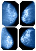 picture of prophylactic  - mammography collection - JPG