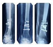 broken leg collection - x-ray pictures