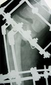 x-ray picture with metallic construction