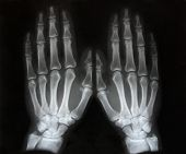 black and white photo of x-ray picture  of human hands