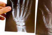 Médico com raio-x da mão