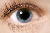 pic of contact lenses  - a young woman - JPG