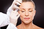 picture of close-up middle-aged woman  - middle aged woman with correction marks preparing for plastic surgery - JPG