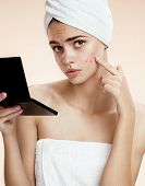 picture of ugly  - photos of ugly problem skin girl on beige background - JPG