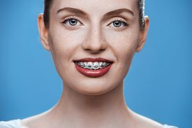 stock photo of overbite  - Happy beautiful girl with braces on blue background - JPG