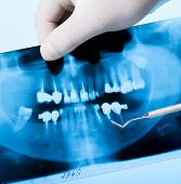 x-ray photo of teeth. Dental equipment