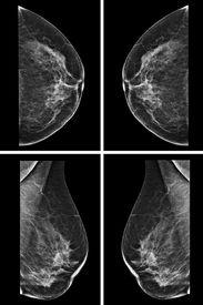 stock photo of mammogram  - Lateral mammogram of female breast - JPG