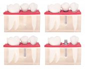 Implante Dental modelo