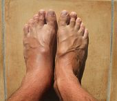 image of hemorrhage  - Broken ankle or twisted ankle foot mens feet - JPG