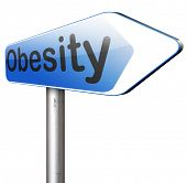stock photo of obesity  - obesity and overweight in need for diet  - JPG