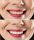 Smiling Woman Before And After Teeth Whitening Procedure, Closeup poster