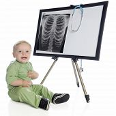 An adorable baby boy in green scrubs, happily sitting beside an easel with a human chest x-ray and stethoscope.