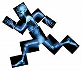 Marathon (human Bone Is Running) ,(whole Body X-ray)