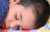 Close up image of a little cute boy sleeping in his bed suffering severe urticaria, netlte rash