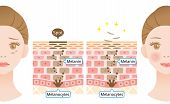 Mechanism Of Skin Cell Turnover Illustration. Melanin And Melanocytes In Human Skin Layer With Woman poster