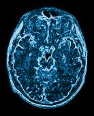 image of cat-scan  - mri head magnetic resonance image of the head scan - JPG