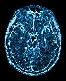 image of magnetic resonance imaging  - mri head magnetic resonance image of the head scan - JPG