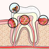 picture of germs  - Scheme of tooth section with different damages and germs - JPG