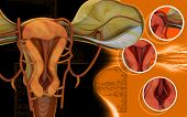stock photo of fimbriae  - Digital illustration of  Uterus  in  colour  background - JPG
