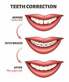 Medical Poster Showing A Teeth Correction Process. Vector Illustration Depicting Human Smile, Teeth  poster