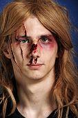 Man beaten up