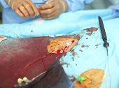 Surgery In Intervention Laboratory