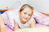 Little girl of 7 years old with chicken pox resting in a bed