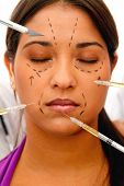 Woman going into surgery with face lift marks