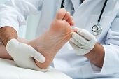 Doctor dermatologist examines the foot on the presence of athlete's foot