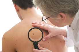 picture of mole  - Dermatologist examines a mole of male patient - JPG