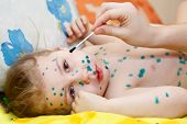 Little Child With Varicella Zoster Virus Illness. Therapy Of Green Paint Or Brilliant Green Dye.