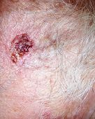 pic of scabs  - A scab on a bit of hairy human flesh - JPG