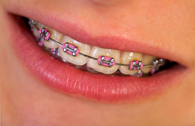 stock photo of overbite  - Close up of a beautiful pink braces  - JPG