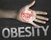 image of obese  - Educational and Creative composition with the message Stop Obesity on the blackboard - JPG