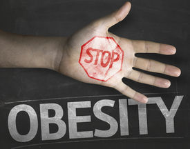 stock photo of obese children  - Educational and Creative composition with the message Stop Obesity on the blackboard - JPG
