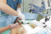 stock photo of icu  - Teamwork with Patient seriously injured in the ICU - JPG