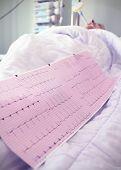 Cardiogram At The Bedside. Medical Concept