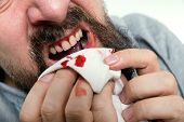 Man Is Suffering Gums Bleeding