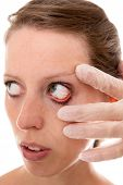 Checkup Woman With A Conjunctivitis