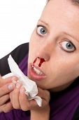 Young Woman With Bleeding Nose Isolated On White