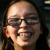 picture of nymphet  - This is a picture of a young girl with braces - JPG