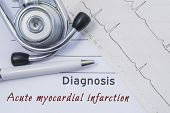 Diagnosis Of Acute Myocardial Infarction. Stethoscope, Printed Electrocardiogram And Pen Are On Pape poster