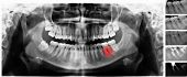 X-ray Scan Of Human Teeth For Analyzing And Treating With Marking Of The Diseased Tooth And The Stag poster