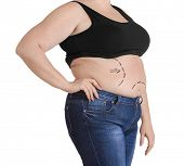 Stout adult woman with marks on belly for plastic operation. Weight loss concept poster
