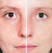 stock photo of shame  - Woman with spotty skin with deep pores and blackhead and healed soft skin - JPG