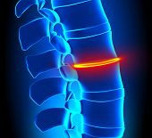 Thinning Disc Degeneration - Spine problem