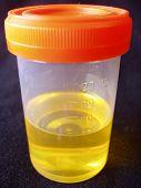 Urine Sample On Black