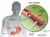 foto of diabetes mellitus  - medical illustration of the symptoms of type 1 diabetes - JPG
