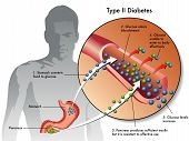 stock photo of diabetes symptoms  - medical illustration of the symptoms of type 2 diabetes - JPG